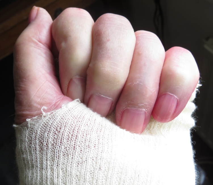 Fist in bandage