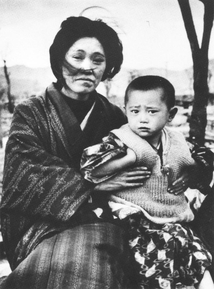 Mother and Child at Hiroshima 1945
